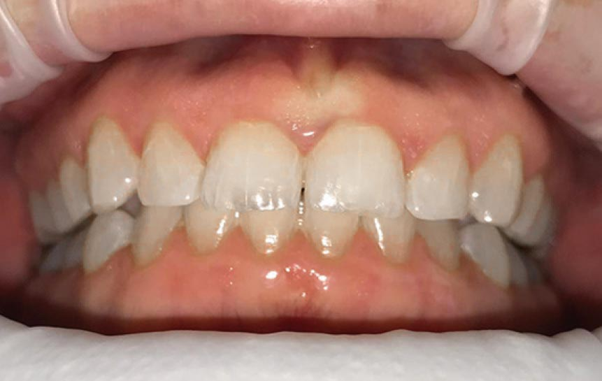 Denta One Aligner Zahnschienen